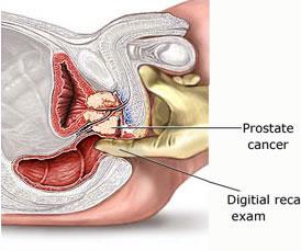 καρκινος προστατη